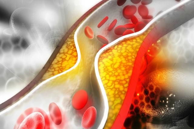 Холестеролът – доказано невинен